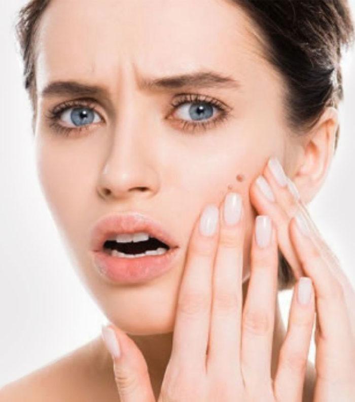 Oferta tratamiento acné Pamplona - Burlada